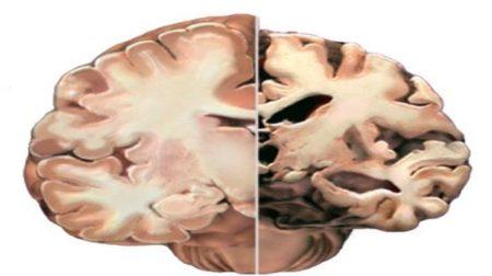 Imagen de un cerebro diagnosticado con alzheimer respecto a uno normal